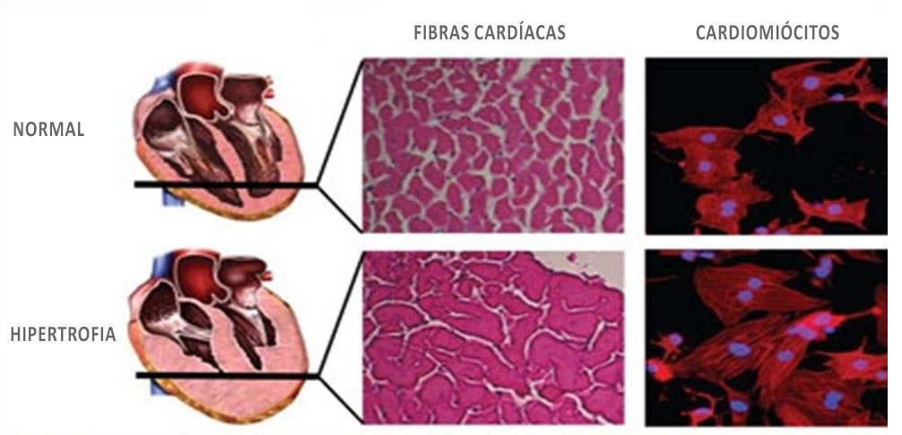 hipertrofia-cardica